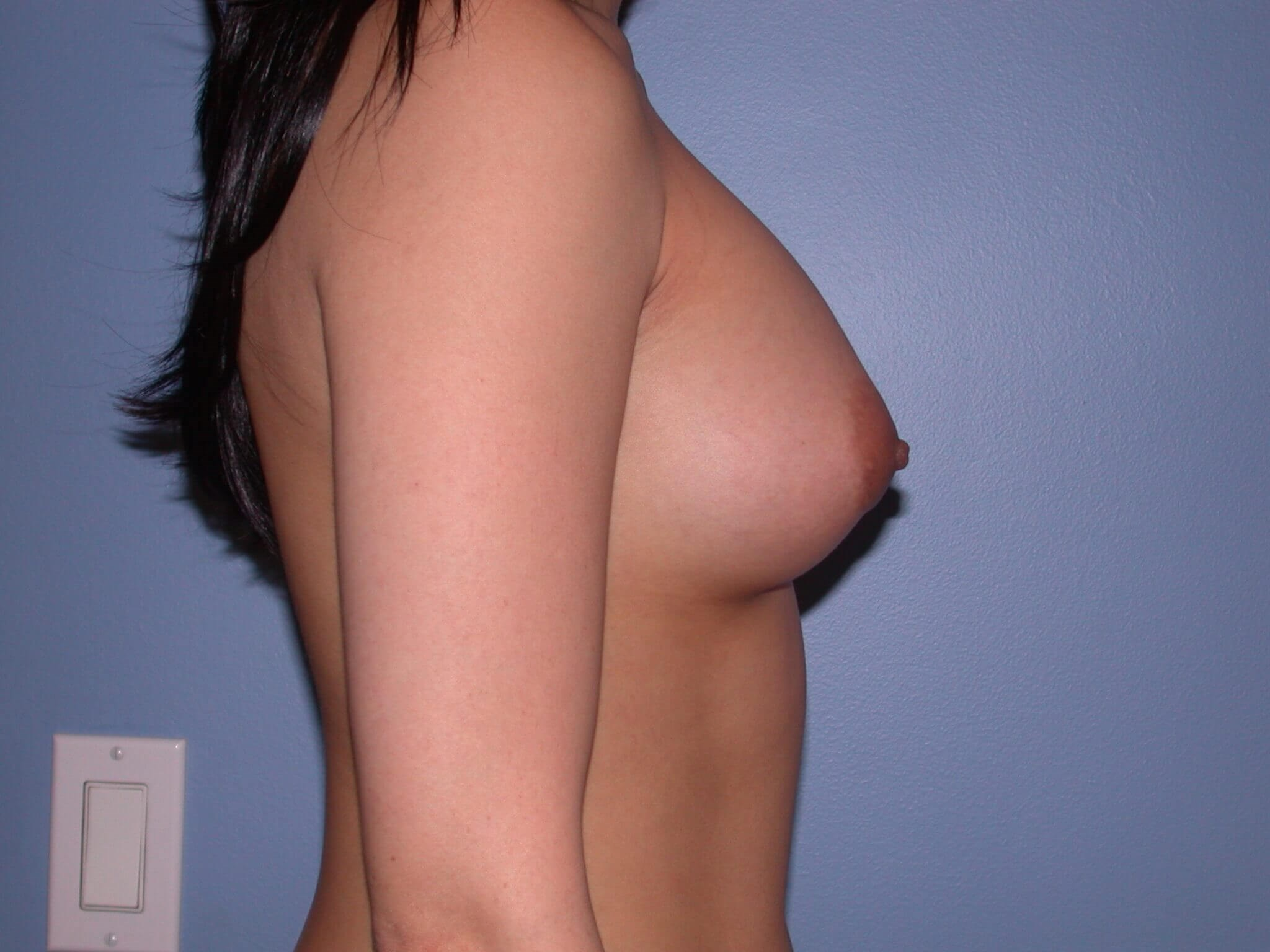 Breast Augmentation Side Right After