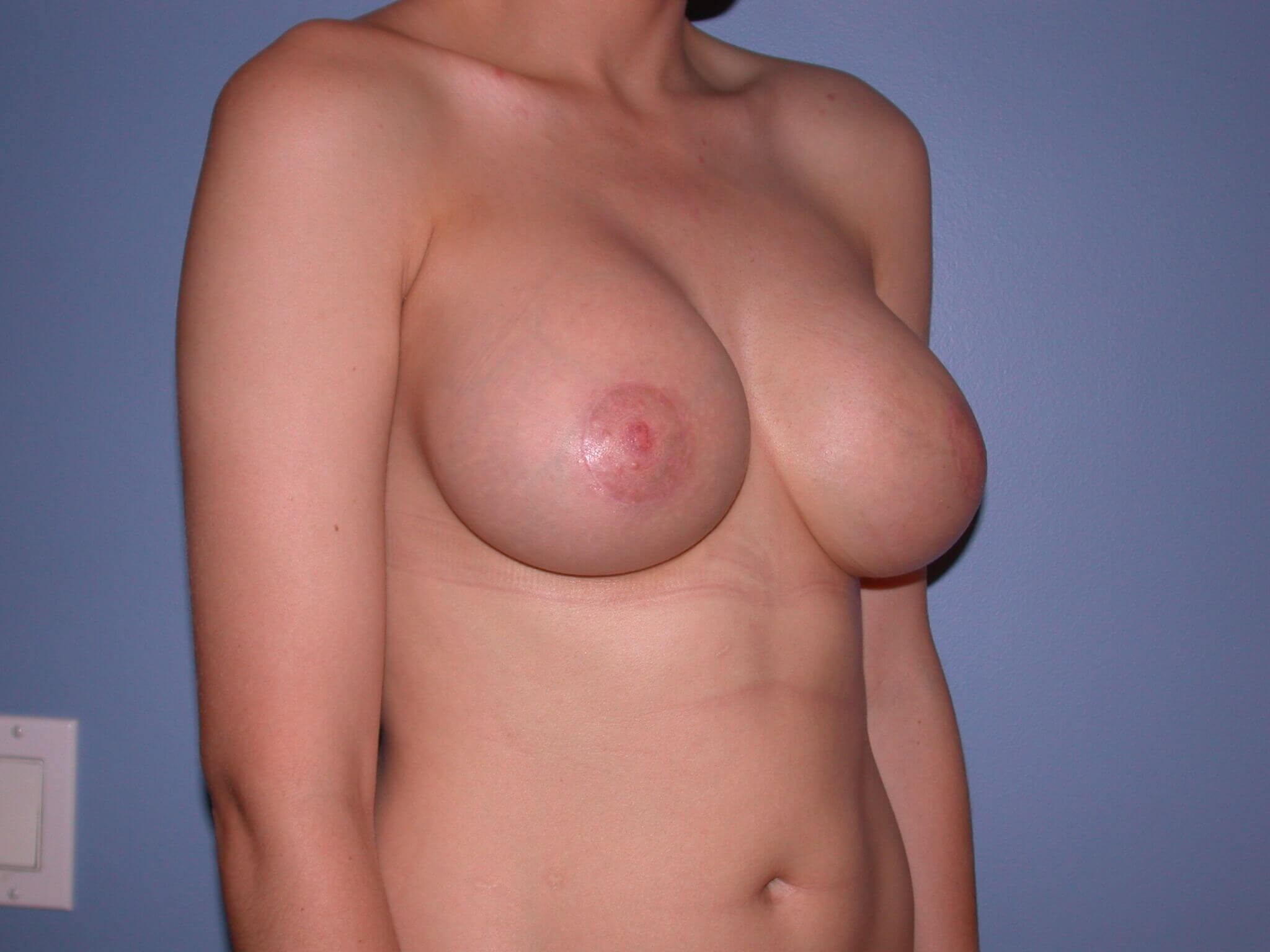 Breast Augmentation Side View After