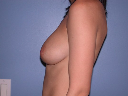 Breast Augmentation Side Left Before