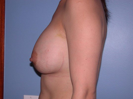 Breast Augmentation Side Left After