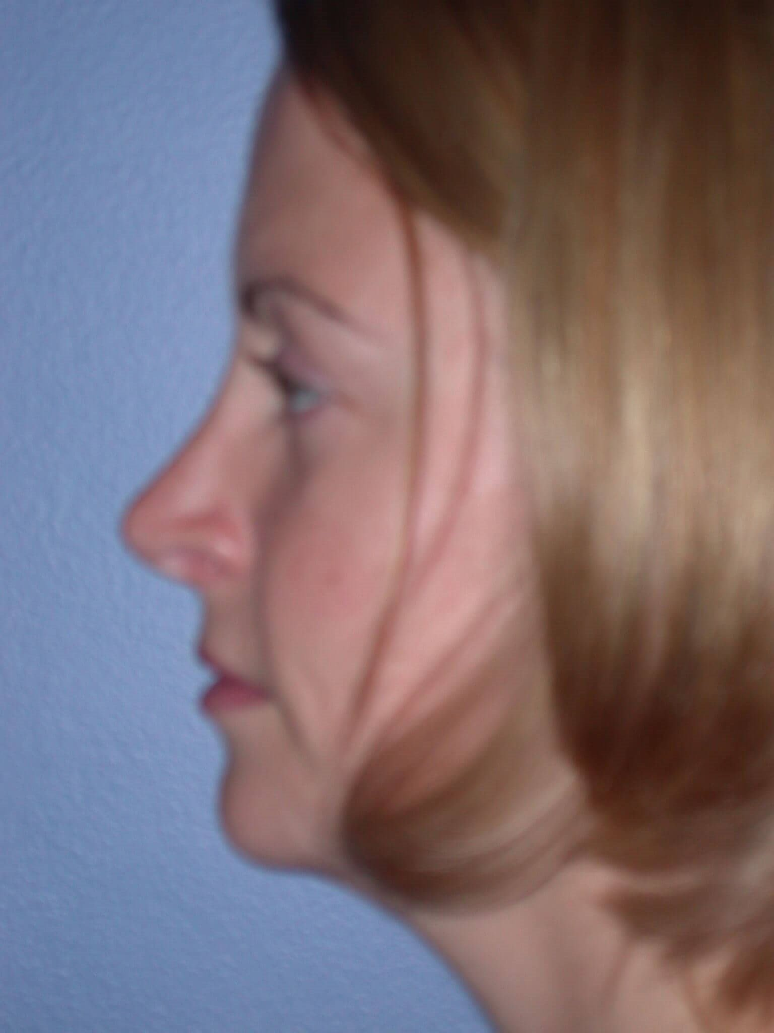 Rhinoplasty Side Left After