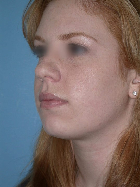 Rhinoplasty Side View After