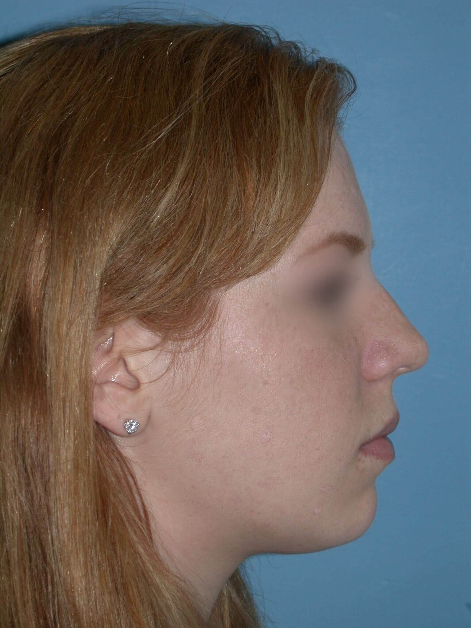 Rhinoplasty Side Right After