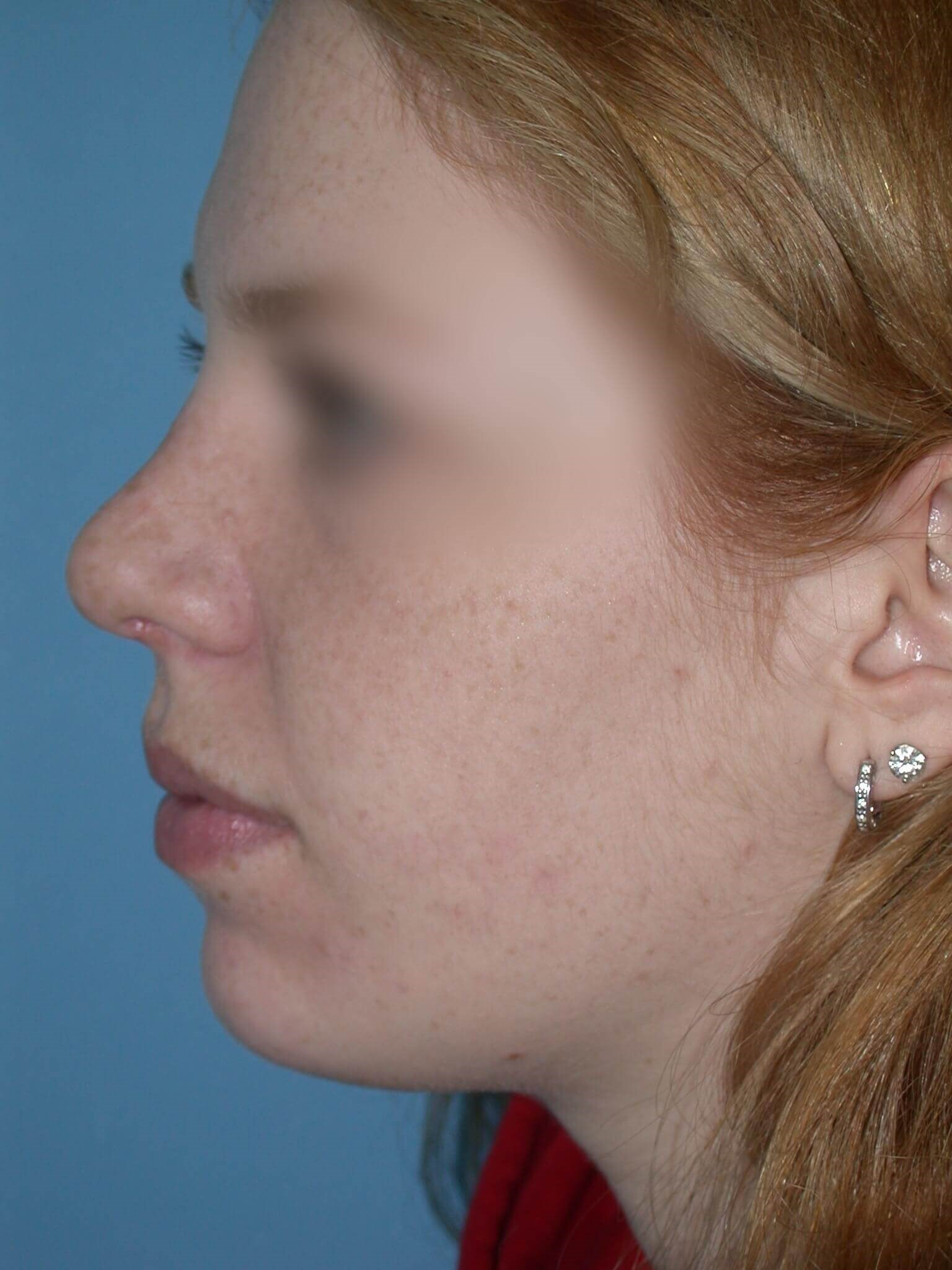 Rhinoplasty Side Left Before