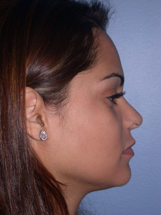 Revision Rhinoplasty Side View After