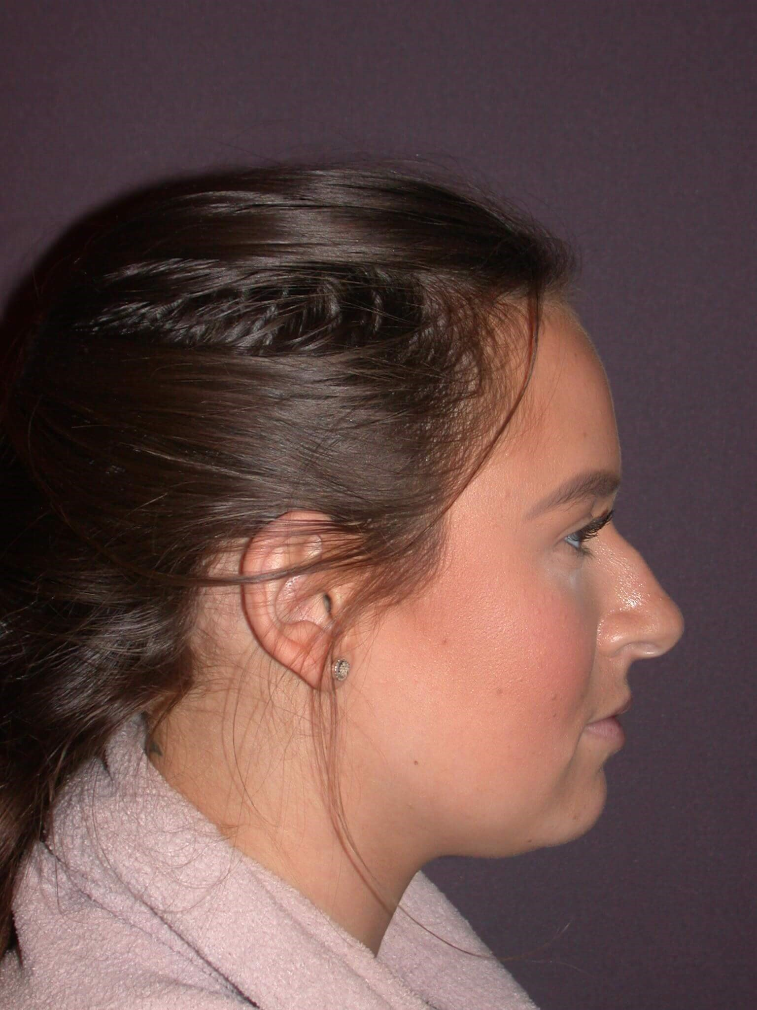 Revision Rhinoplasty Side View Before