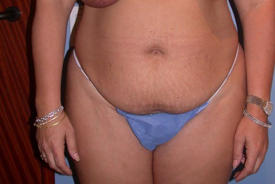 Liposuction Front View Before