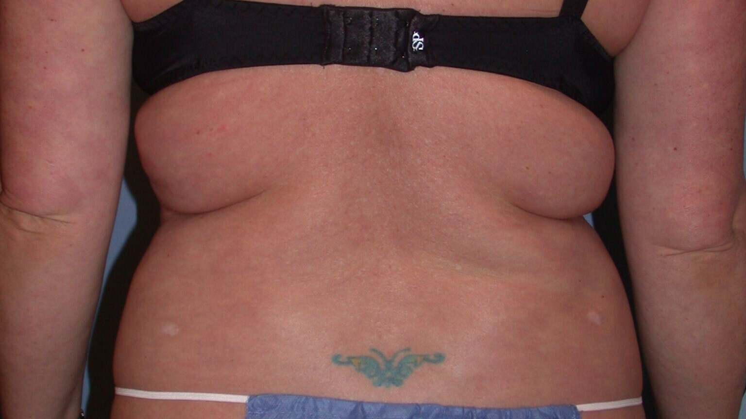 Liposuction Rear View Before