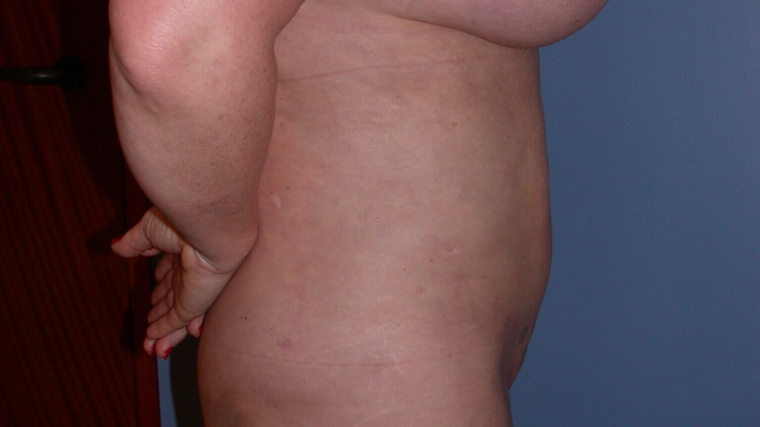 Liposuction Side Right After