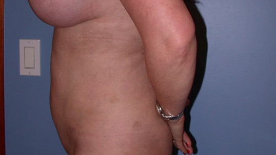 Liposcution Side Left After