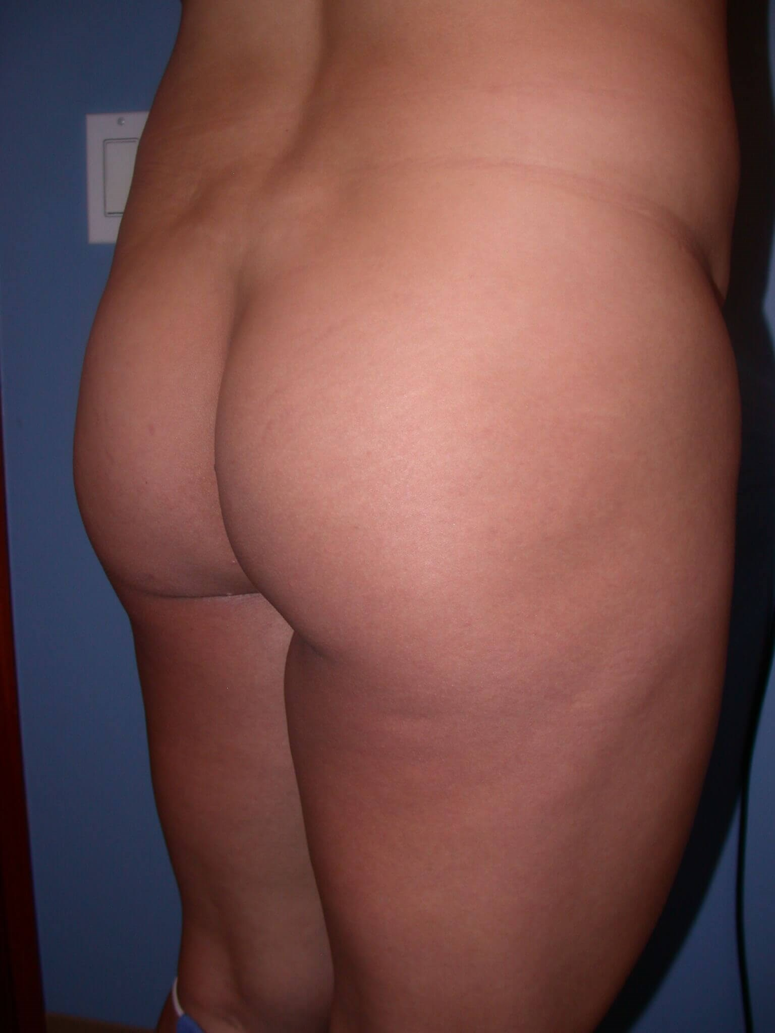 Brazilian Butt Lift Side View Before