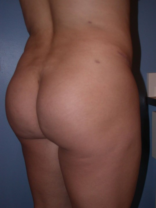 Brazilian Butt Lift Side View After