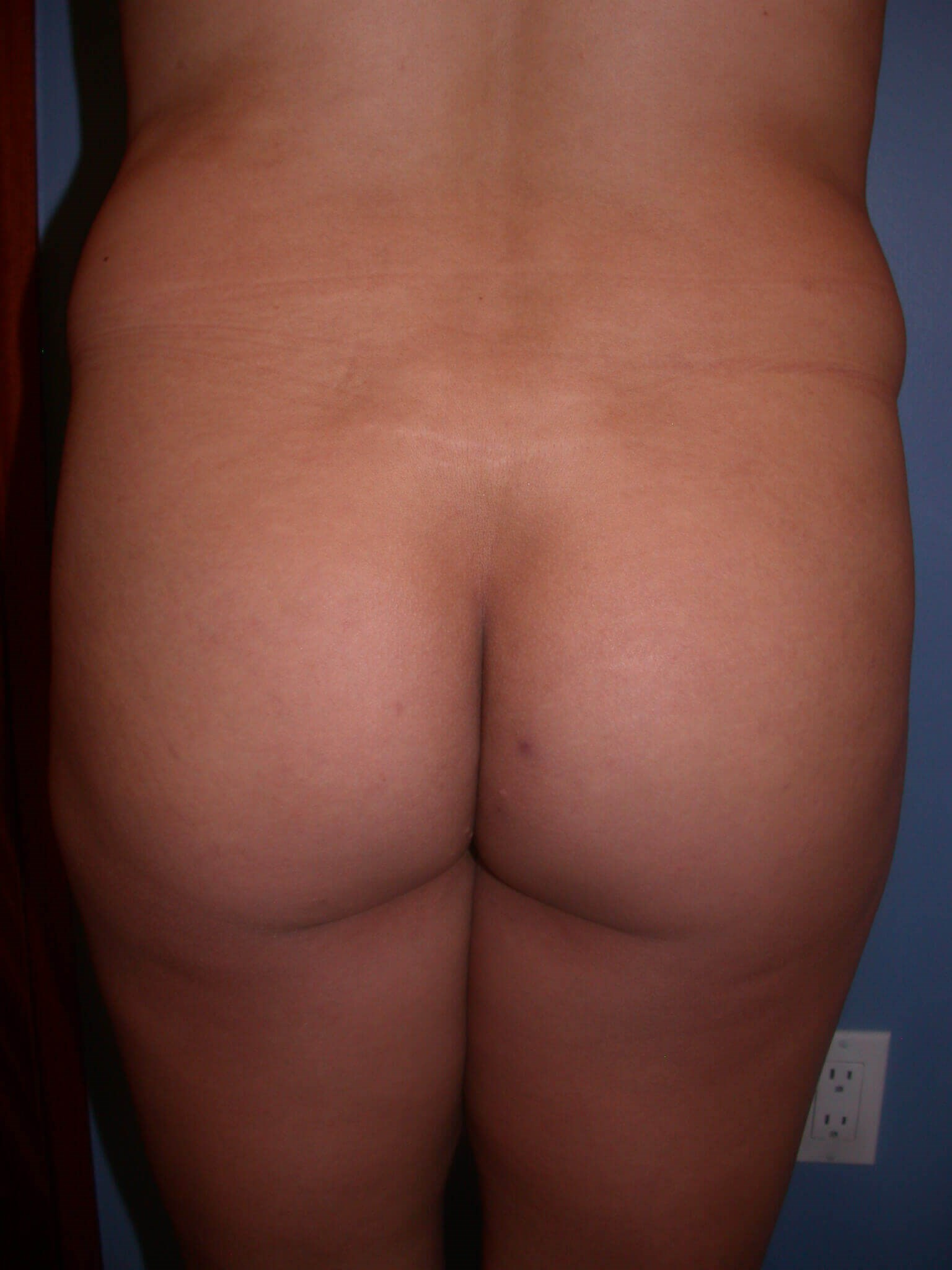 Brazilian Butt Lift Front View Before