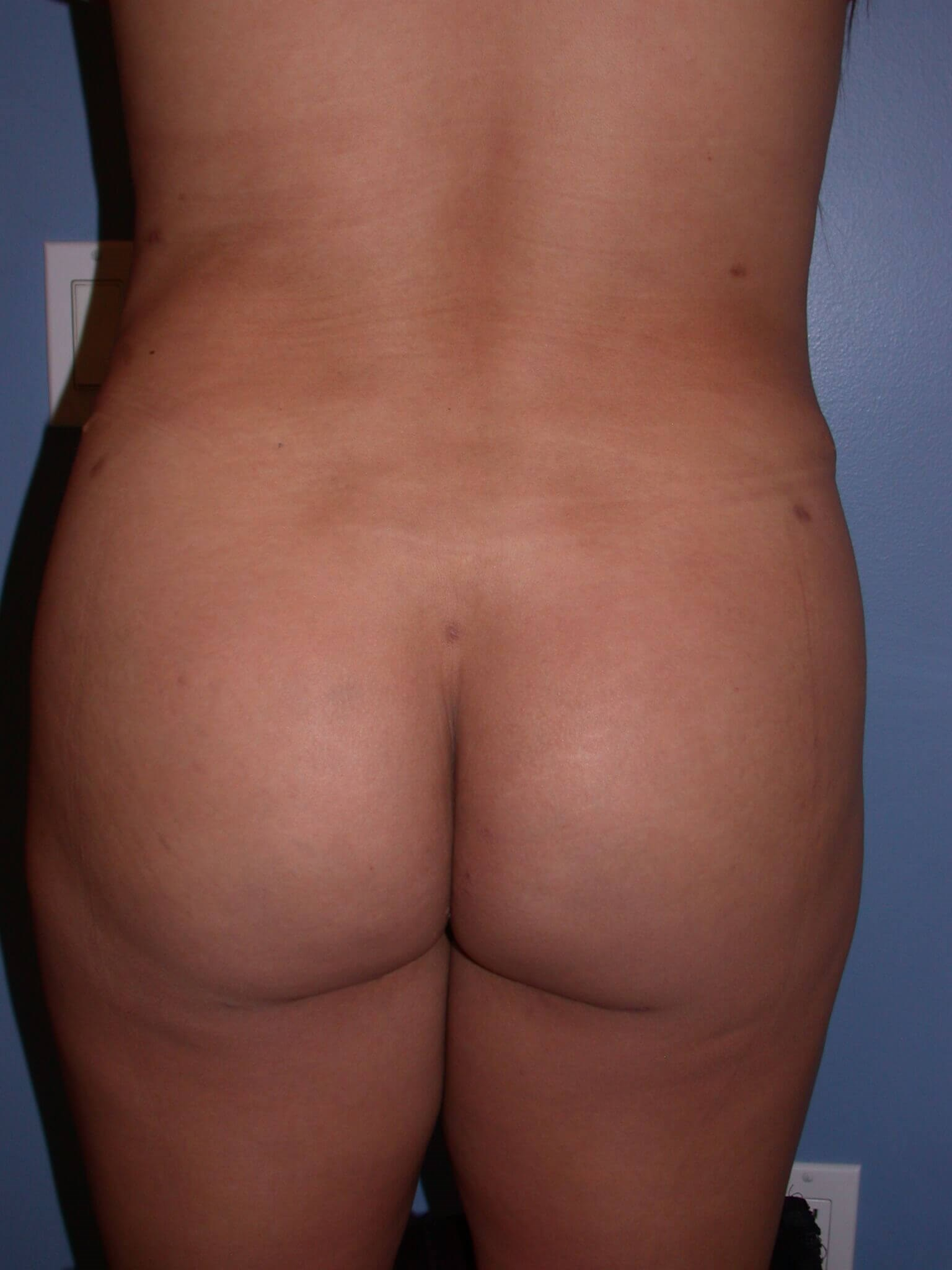 Brazilian Butt Lift Front View After