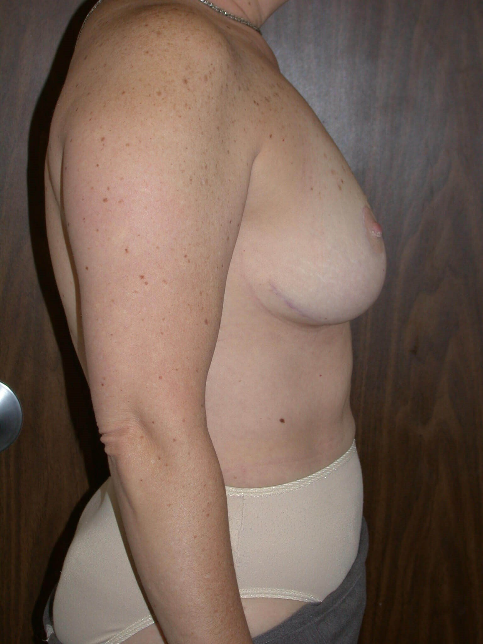 Breast Lift Side Right After