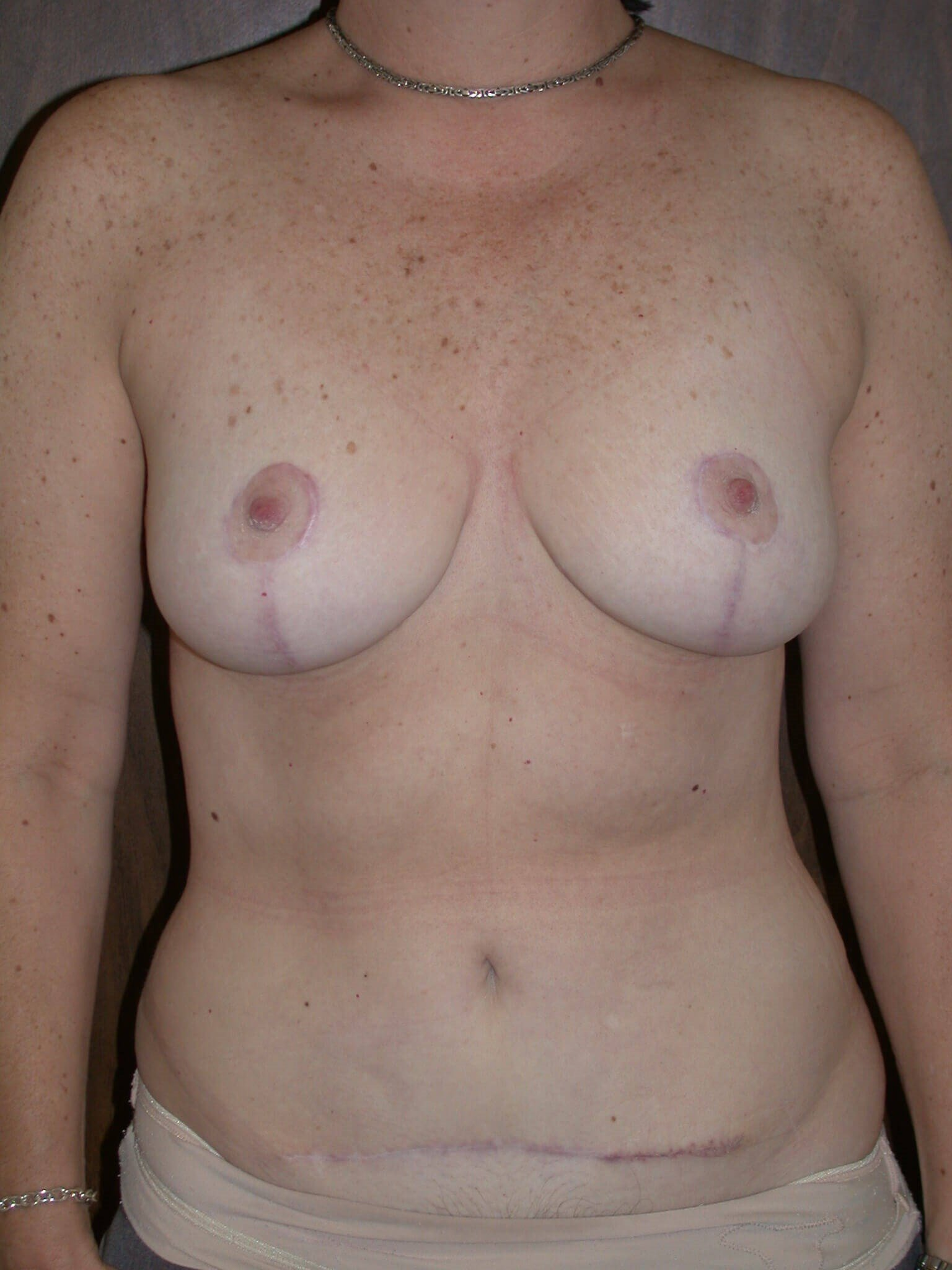 Breast Lift Front View After