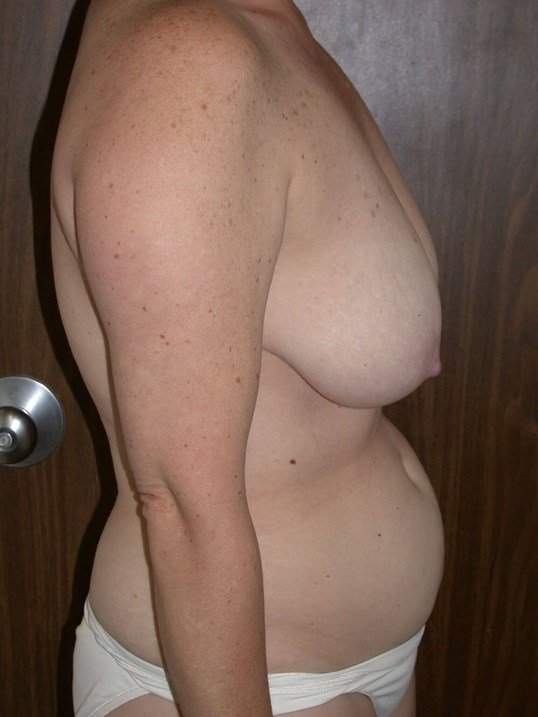 Breast Lift Side Right Before