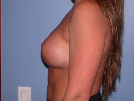 Breast Lift Side Left After
