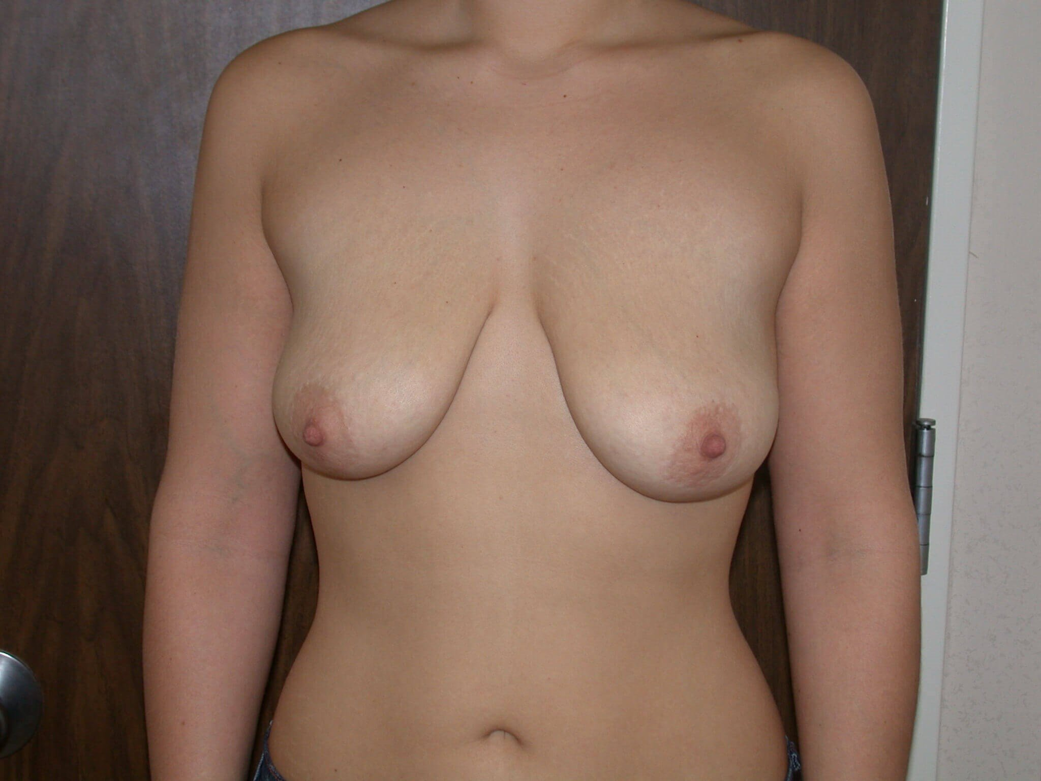 Breast Lift Front View Before