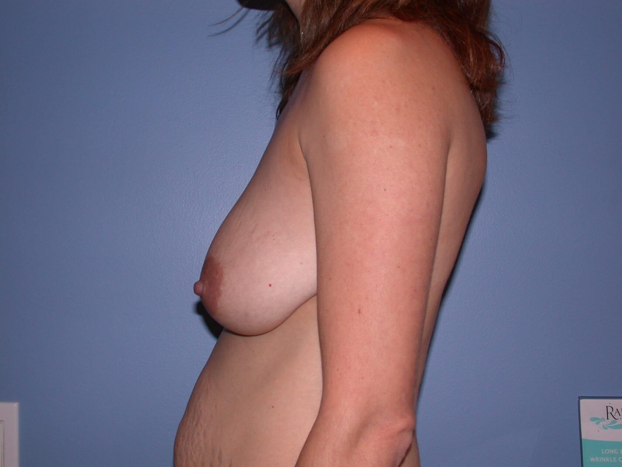 Breast Lift Side Left Before