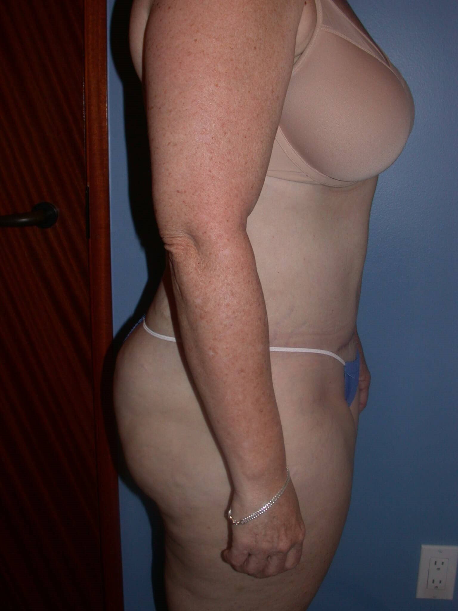 Tummy Tuck Side View After