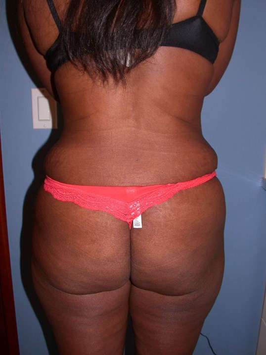 Tummy Tuck Back View After