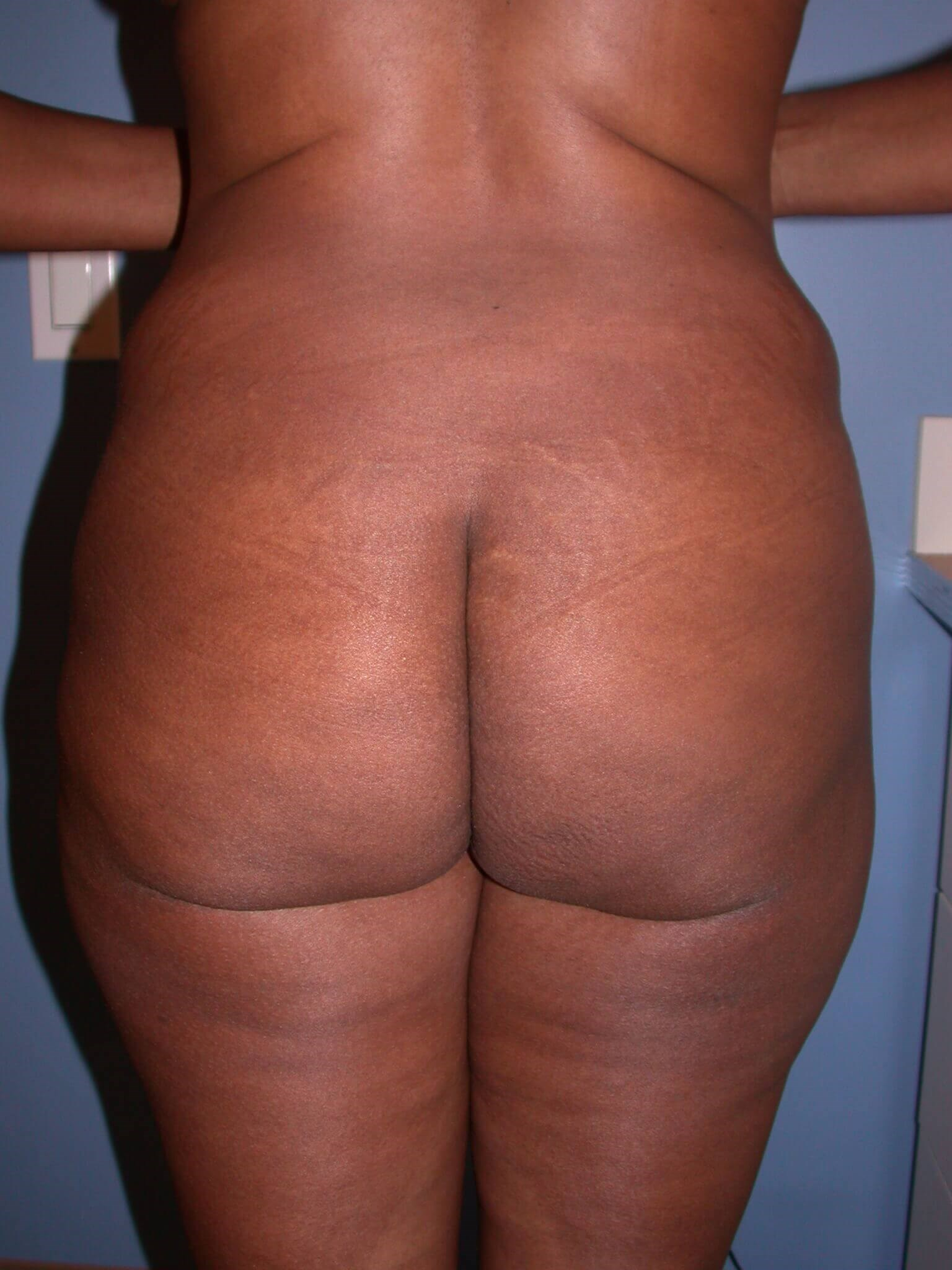 Tummy Tuck Back View Before