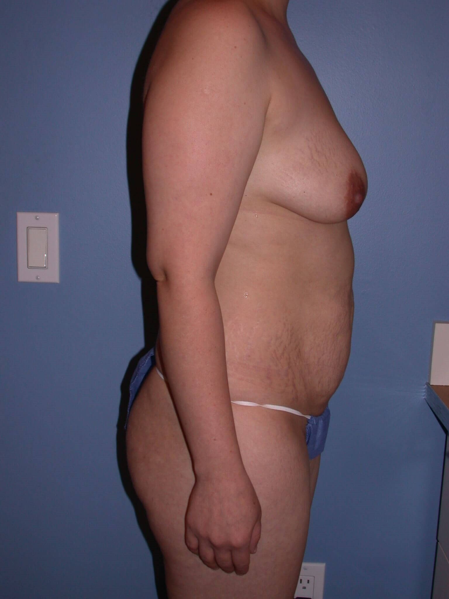 Tummy Tuck Side Right Before