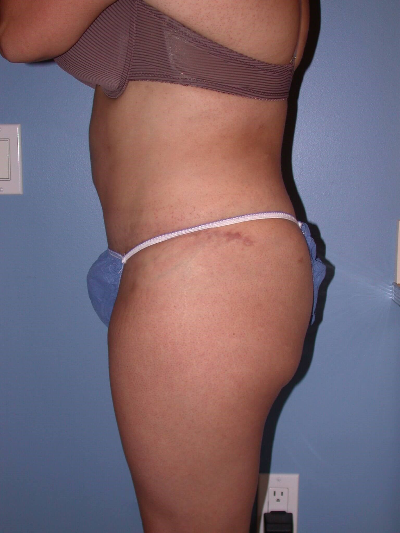 Tummy Tuck Side Left After