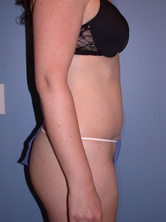 Tummy Tuck Side Right After