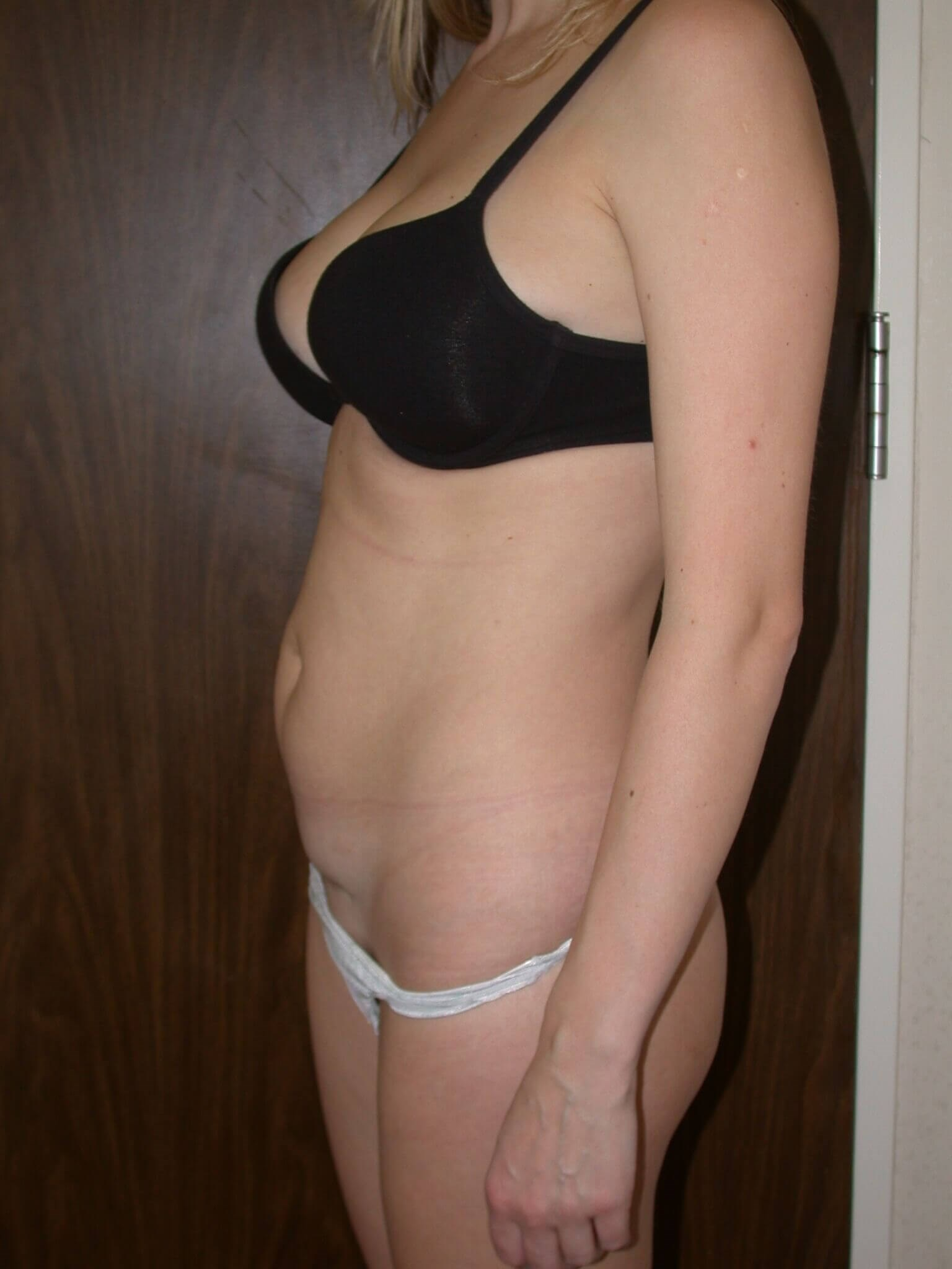 Tummy Tuck Side Left Before