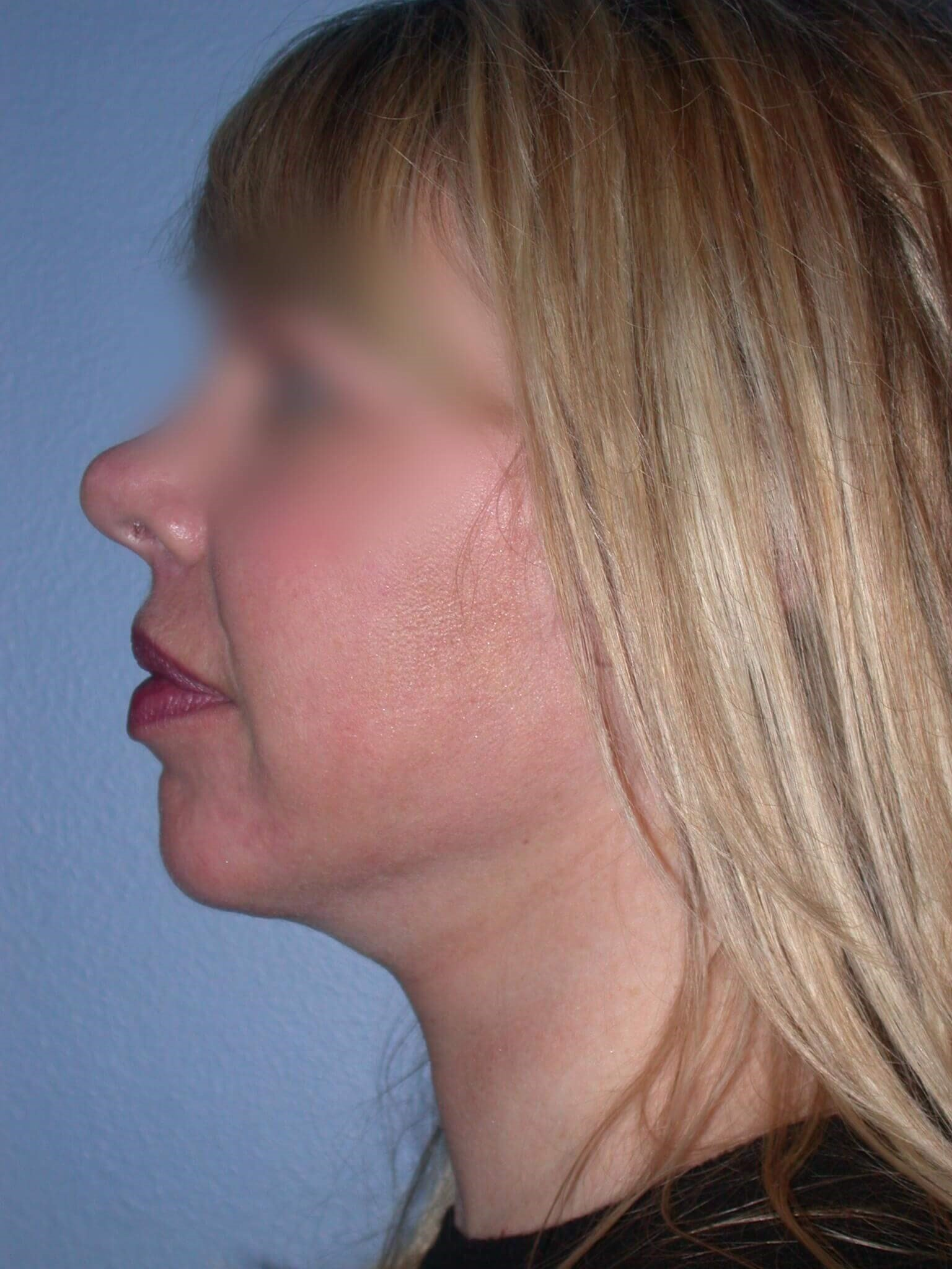 Neck Lift Side Left After
