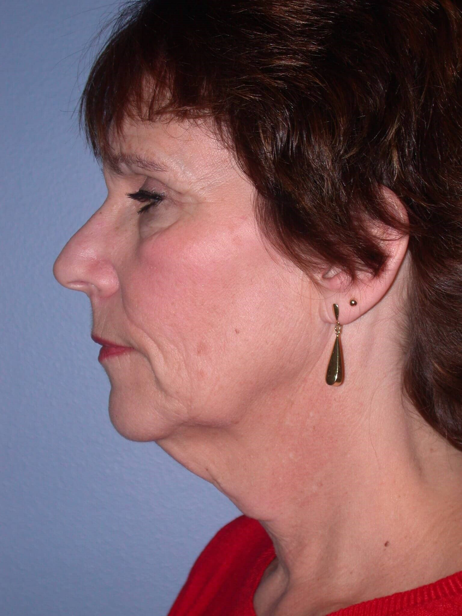 Neck Lift Side Left Before