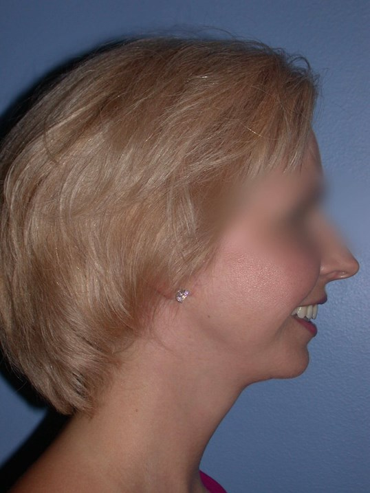Neck Lift Side Right After
