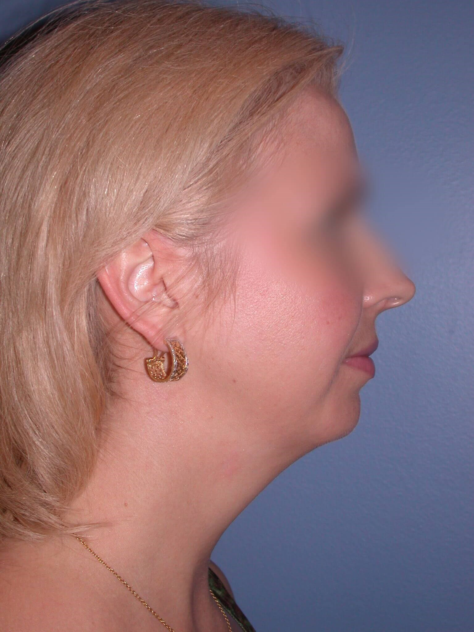 Neck Lift Side Right Before