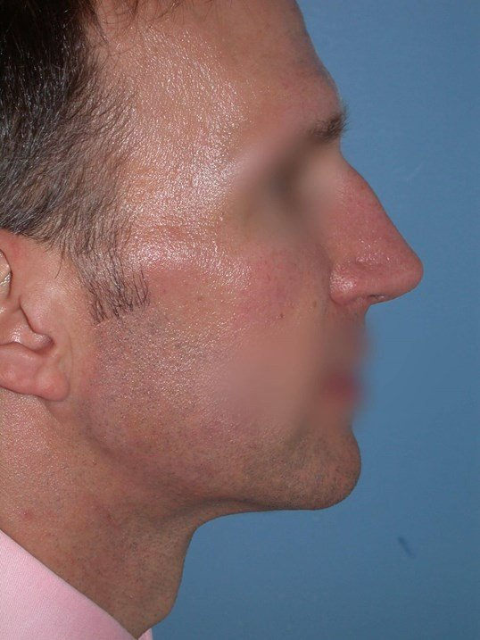 Rhinoplasty Side Right Before