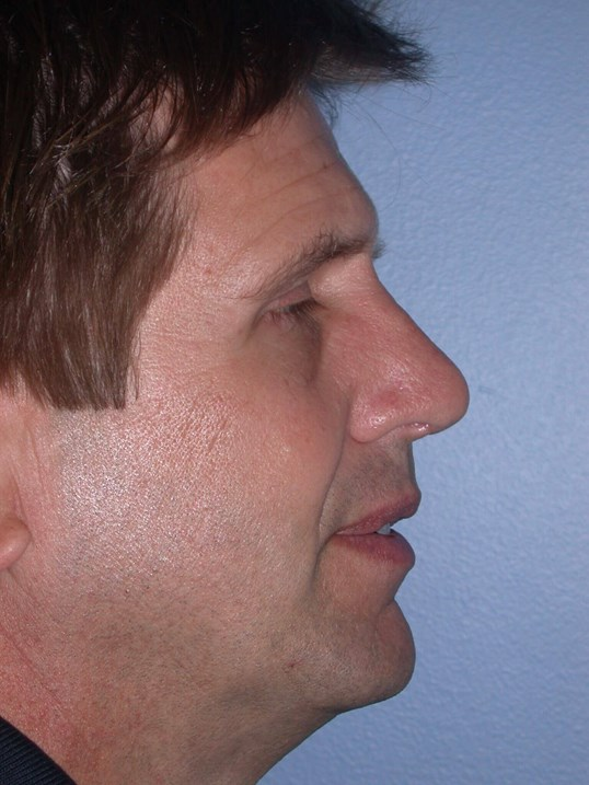 Revision Rhinoplasty Side R After