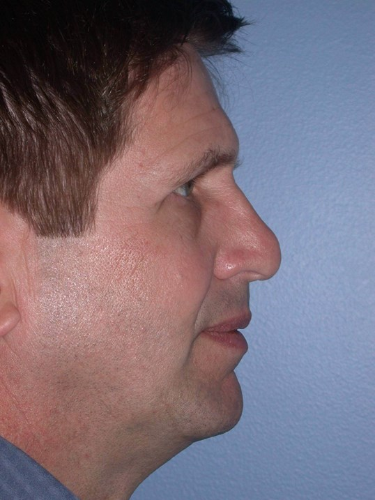 Revision Rhinoplasty Side R Before