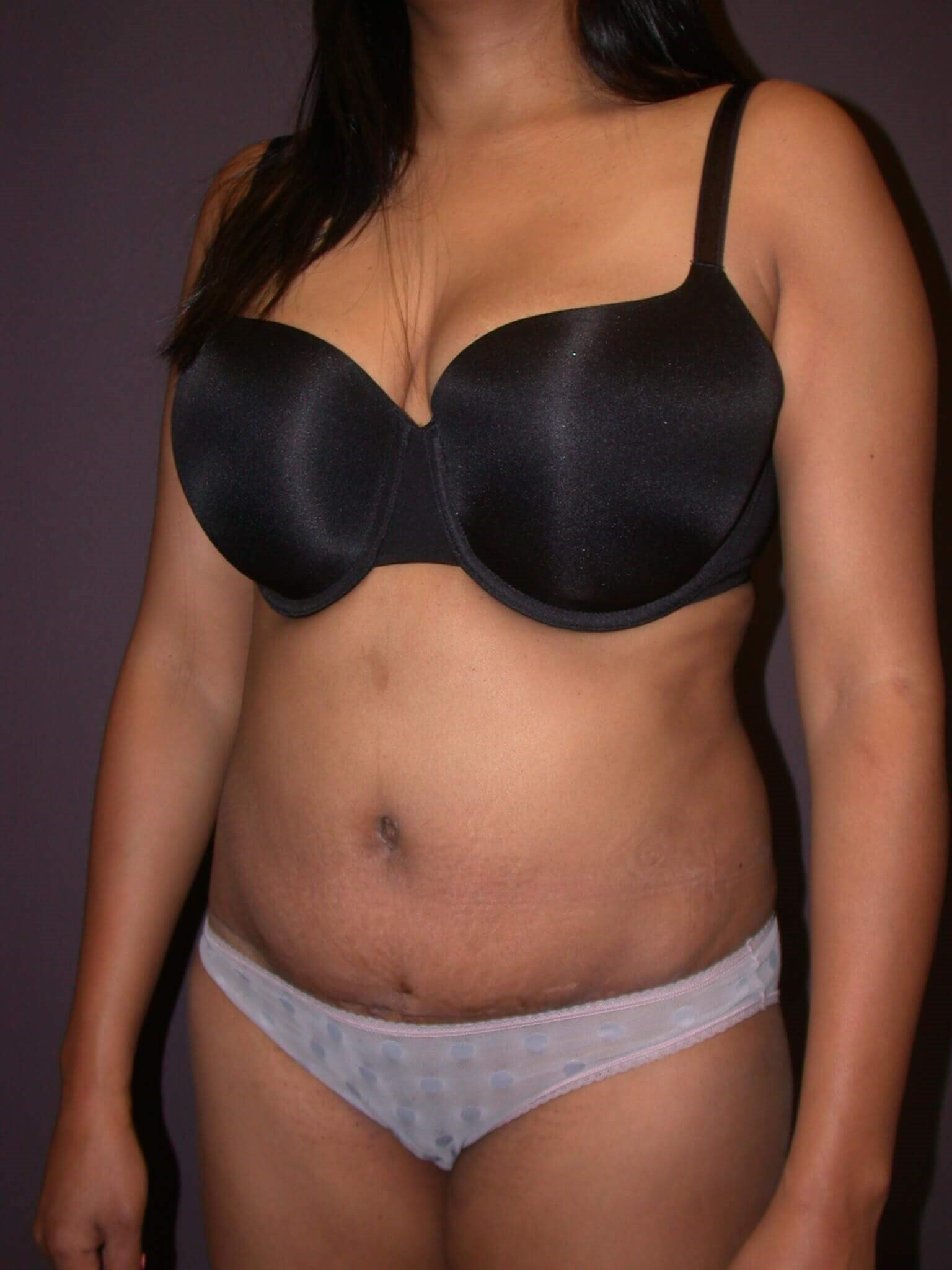 Abdominoplasty Side View After