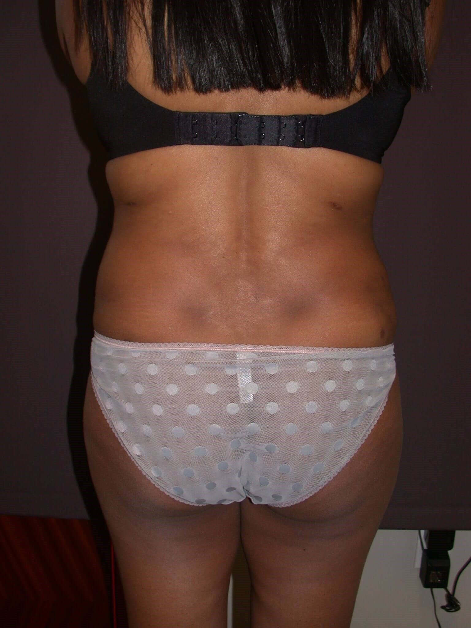 Abdominoplasty Back view After