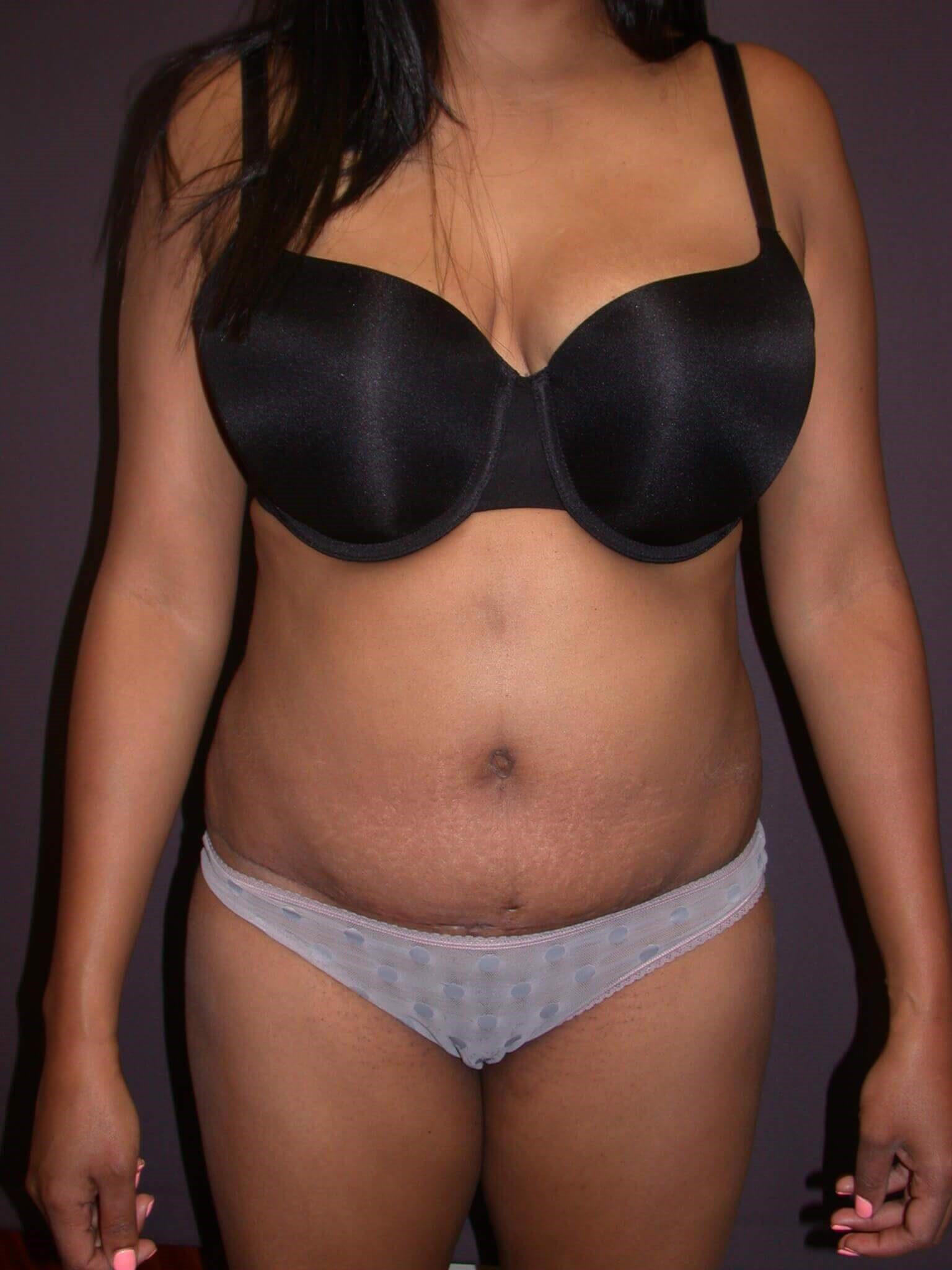 Abdominoplasty Front View After