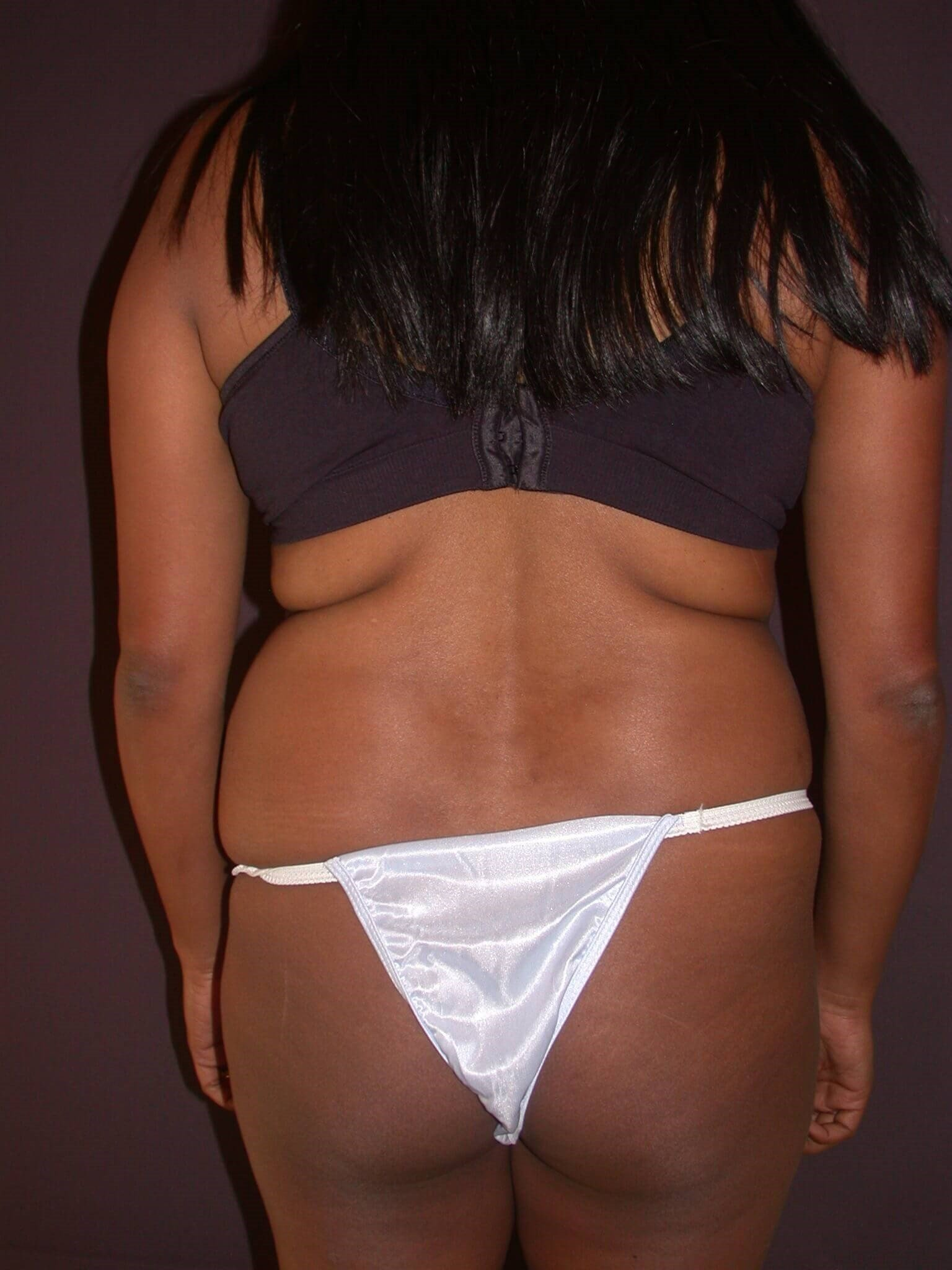 Abdominoplasty Back view Before