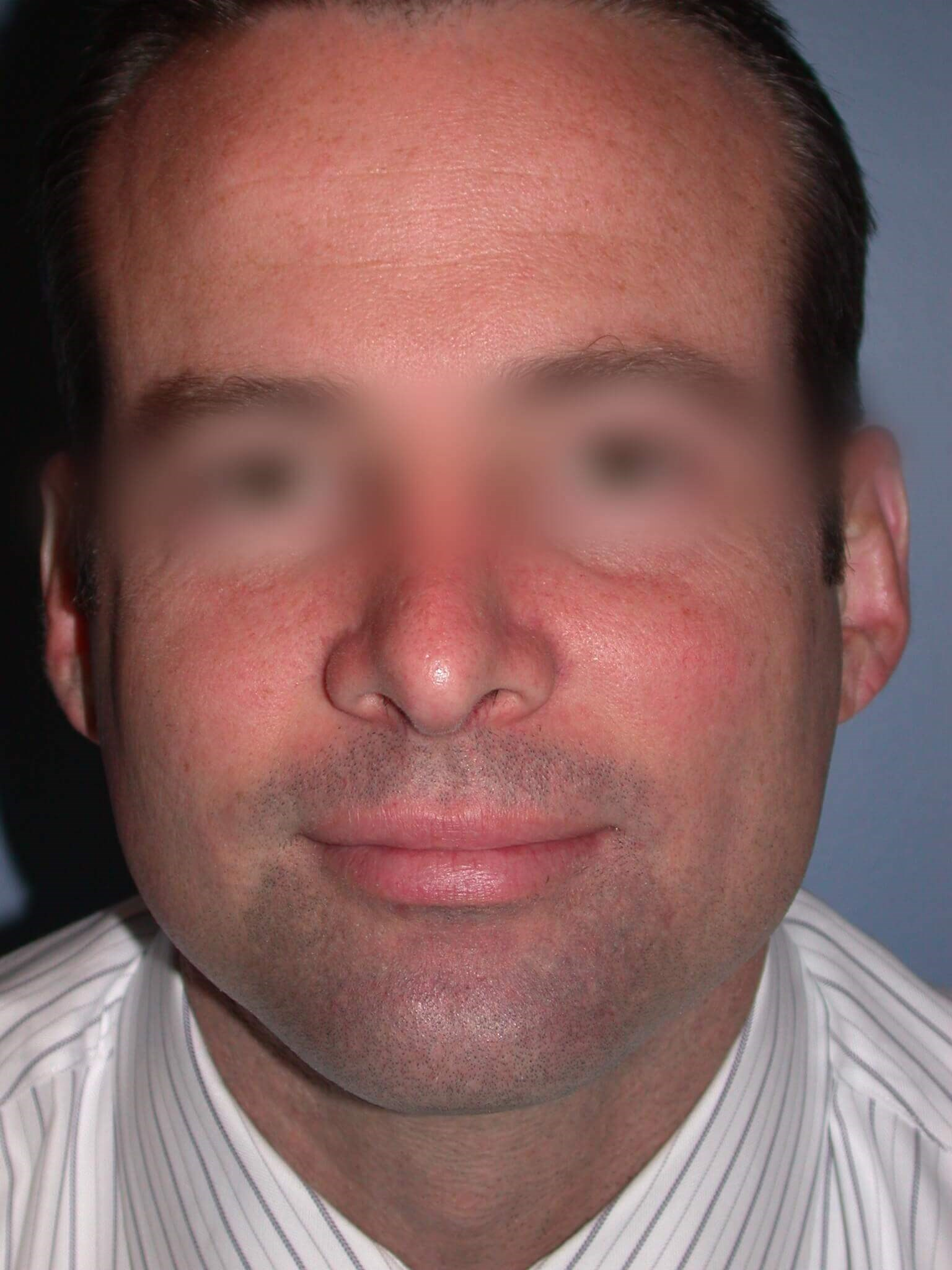 Rhinoplasty Front View After