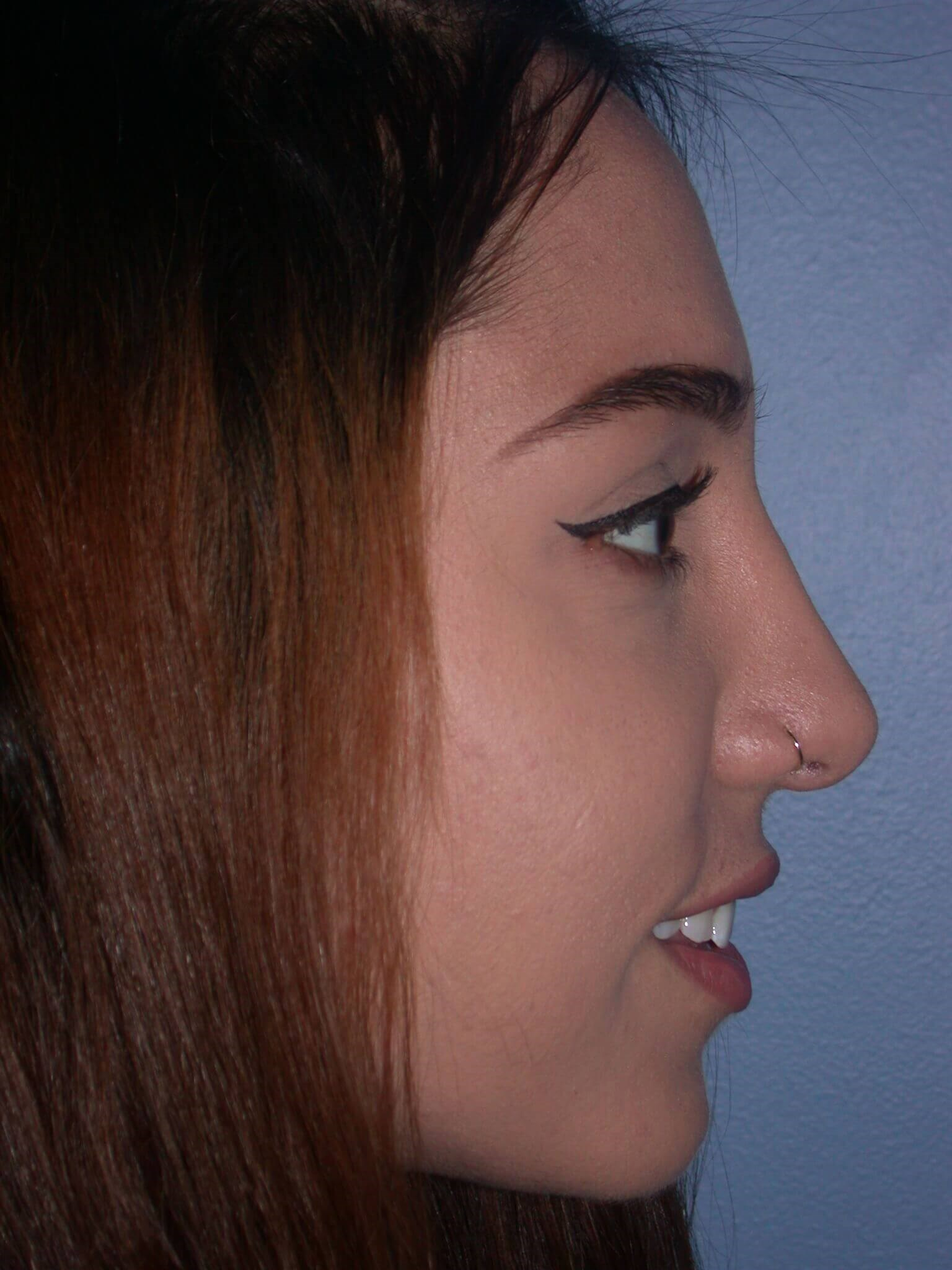 Septoplasty Side Right After