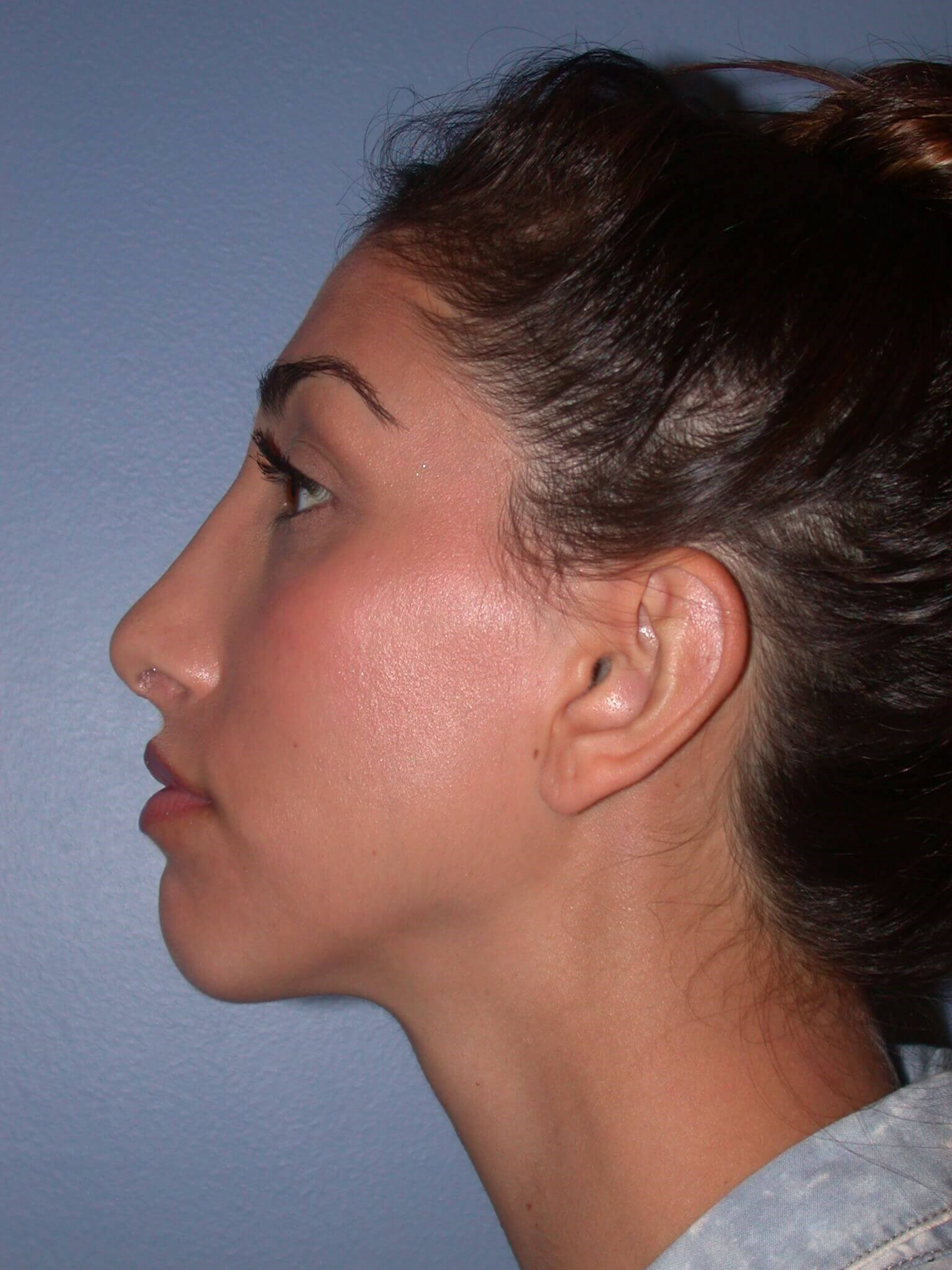 Otoplasty Side Left After