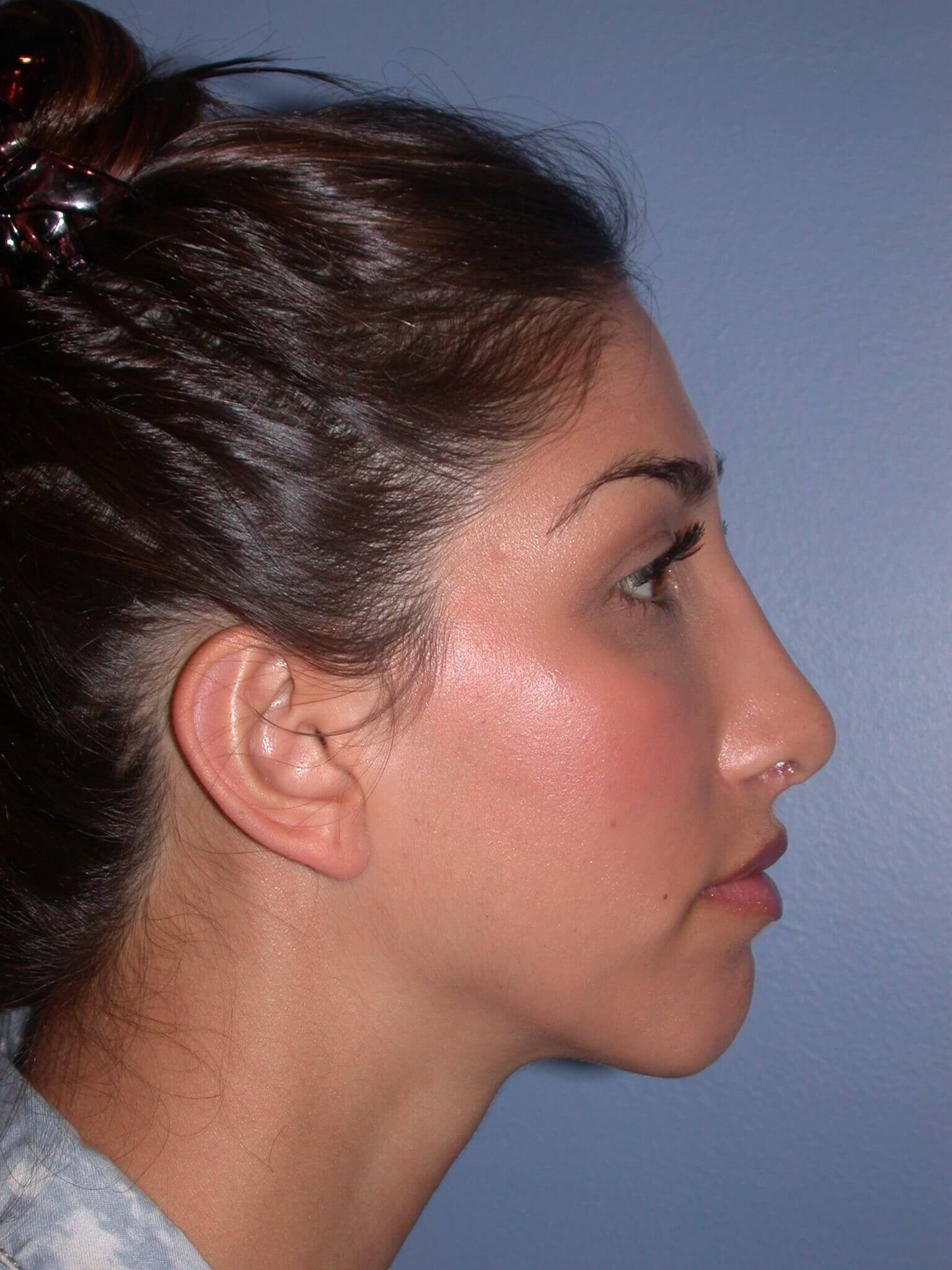 Otoplasty Side Right After
