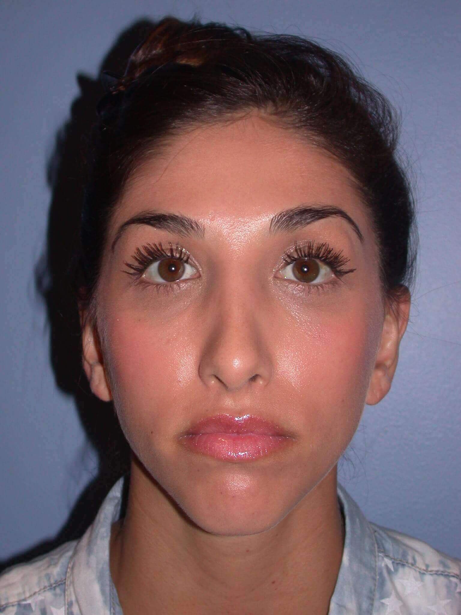 Otoplasty Front View After