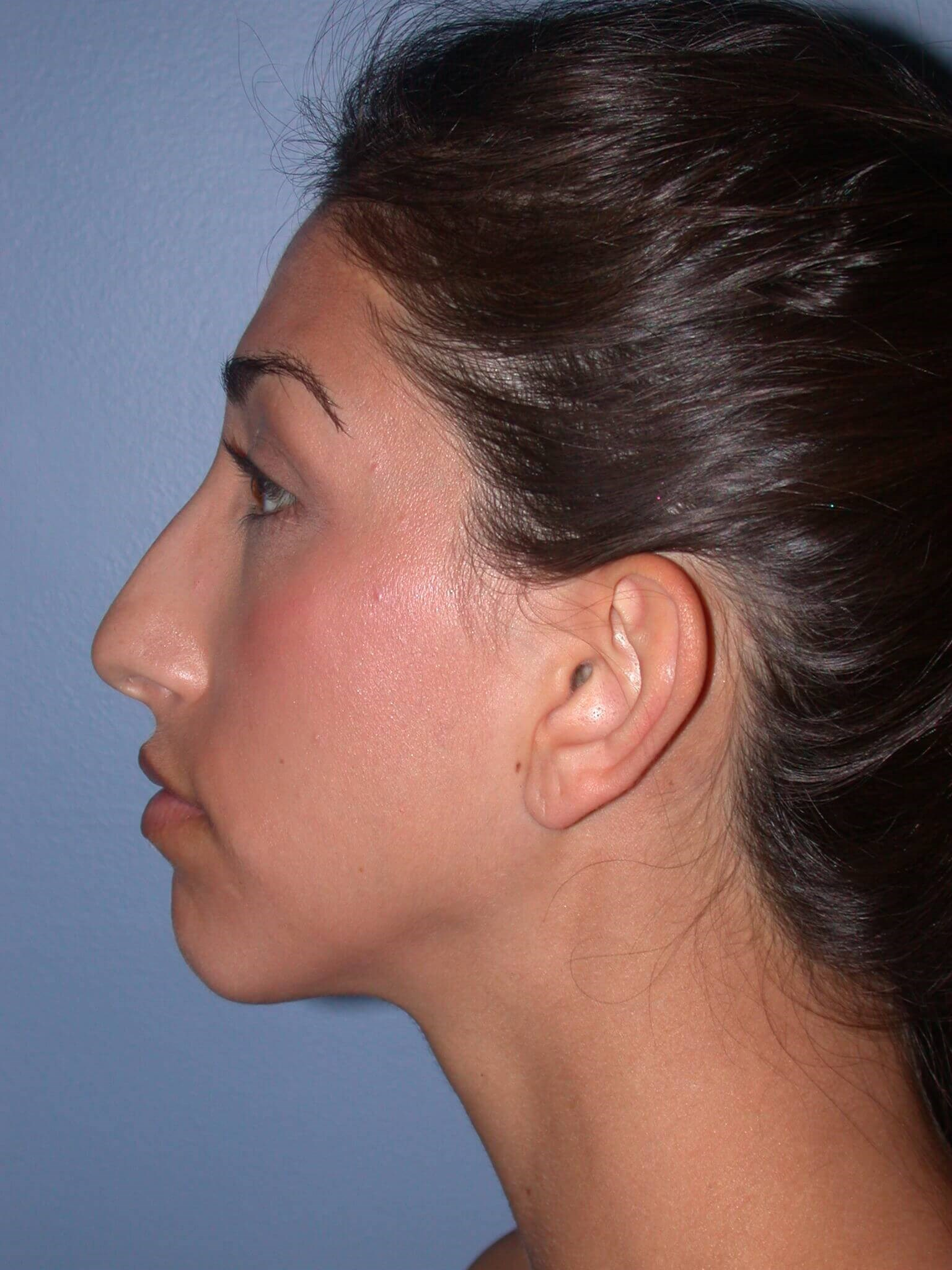 Otoplasty Side Left Before