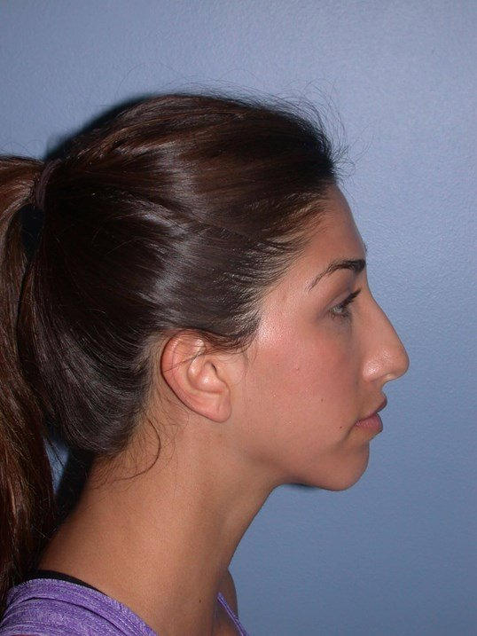 Otoplasty Side Right Before
