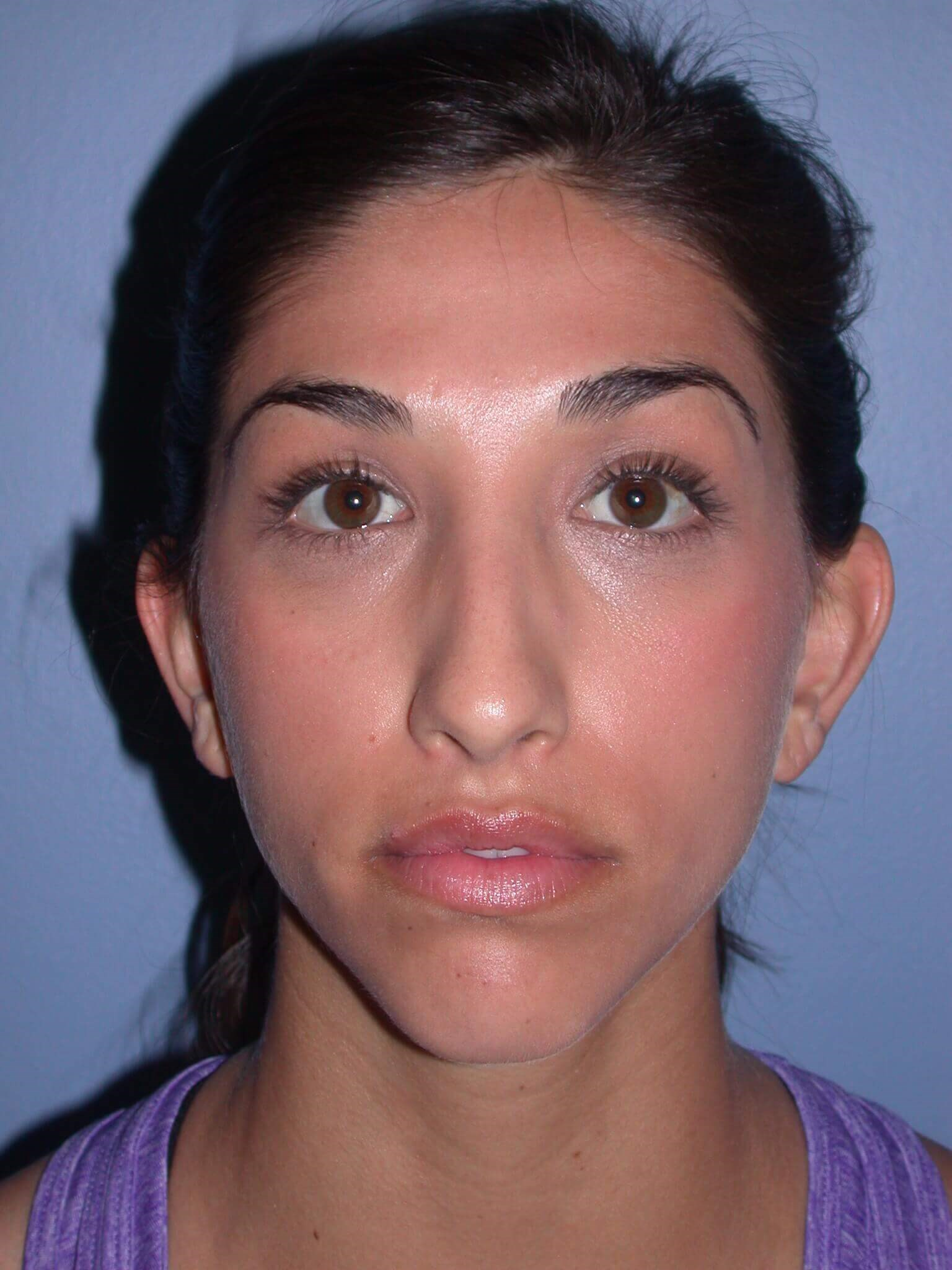 Otoplasty Front View Before